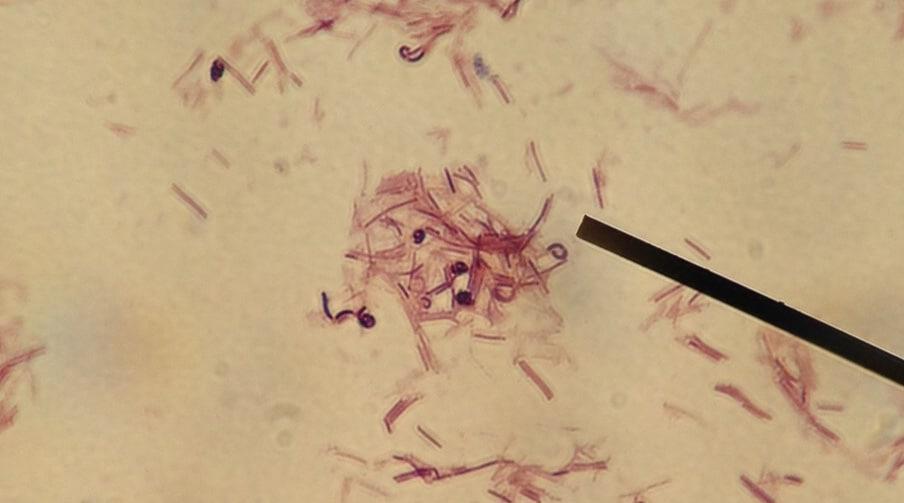 lactobacillu rhamnosus